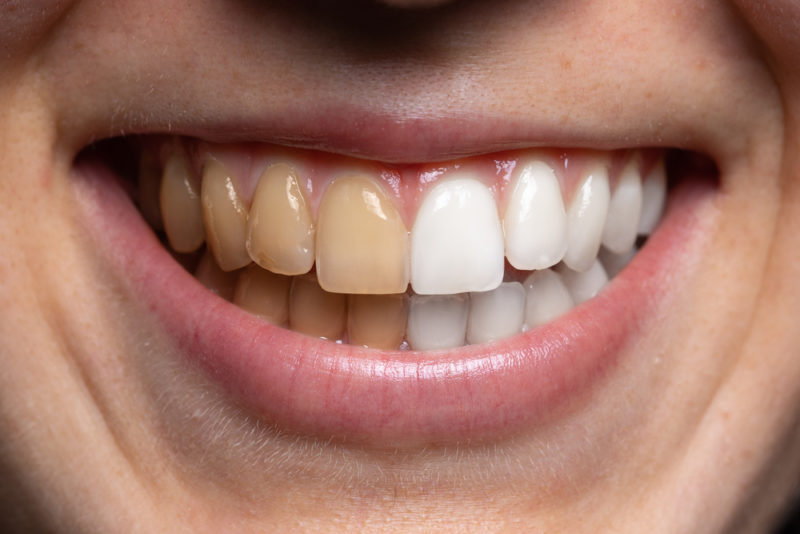 Benefits of Whitening Your Teeth